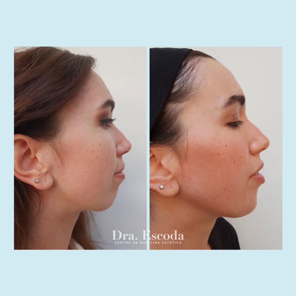 Imagen del antes y después de un tratamiento con ácido hialurónico para corregir un mentón retraído. Realizado por la doctora Escoda