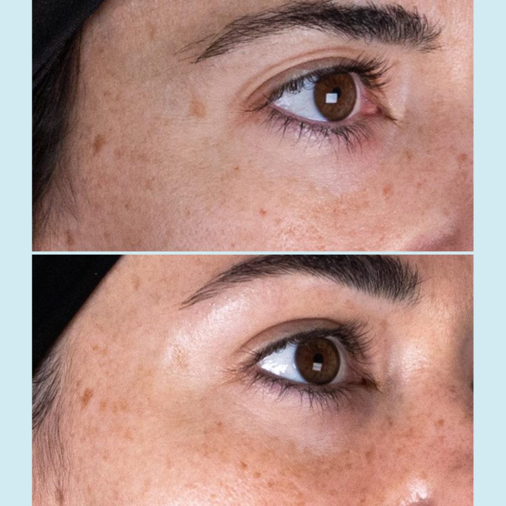 Tratamiento del contorno de ojos con ácido hialurónico no reticulado y vitaminas, Eyelid Vital. Doctora Escoda Barcelona